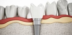 Get your teeth replaced with our proven long-term #teeth #implants treatments in #Melbourne. Prahran Dentist is a ​popular dental clinic for implant dentistry in Windsor, South Yarra etc.