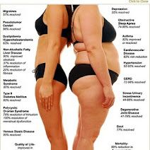 reasons for weight loss surgery