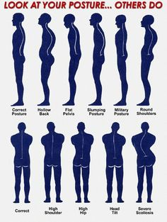 Is Bad #Posture Causing Your #Pain?