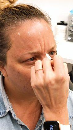 Botox Under Eyes, Botox Eyes, Botox Face, Facial Fillers, Botox Fillers, Dermal Fillers, Lip Fillers, Botox Injection Sites, Botox Injections