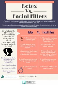 Botox vs. Dermal fillers : Botox vs. Dermal fillers : Few important differences between Botox and Dermal fillers, which will help you to choose the best of them according to your needs !! http://visual.ly/botox-vs-dermal-fillers
