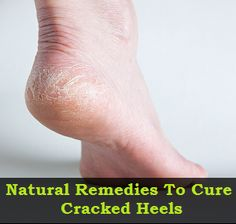 Home remedies to cure Cracked heels