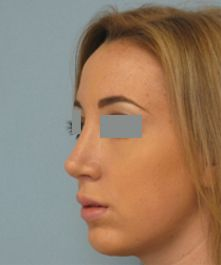 View before and after photos of the rhinoplasty procedure performed by Dr. Vladimir Grigoryants in Los Angeles and Beverly Hills.