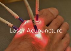 At Calgary Laser, the Laser Acupuncture stimulates the acupuncture points, producing the same effect as the needles. http://www.calgarylaserhealth.com/laser-treatment/laser-acupuncture/