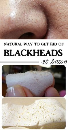 4 natural ways to get rid of blackheads, at home