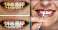 - Aprenda a preparar essa maravilhosa receita de Esta é a forma mais simples e barata de clarear os dentes em casa - apenas 1 ingrediente!
