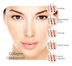 Micro-needling wakes up your Collagen and makes it work like to use to. Call for a consultation today. 303.710.7832