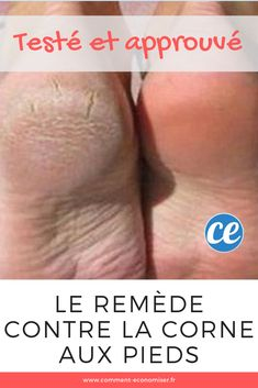 The remedy of grandmother natural and effective against the horn to the feet. - Care - Skin care , beauty ideas and skin care tips Foot Detox Soak, Listerine Foot Soak, Diy Peeling, Homemade Cleaning Products, Healthy Nails, Care Quotes, Feet Care, Nail Care, Body Care