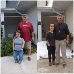36 Best Before and After limb lengthening for achondroplasia images