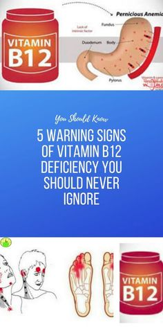 5 Warning Signs of Vitamin Deficiency You Should Never Ignore Health And Fitness Apps, Wellness Fitness, Health And Nutrition, Fitness Diet, Natural Health Tips, Health And Beauty Tips, Healthy Detox, Healthy Smoothies, Forgetting Things