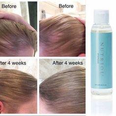 Nutriol shampoo great for growing hair bald patches hair loss ORDER direct bas Hair Growth Shampoo, Nu Skin, Hair Remedies For Growth, Hair Loss Remedies, Prevent Hair Loss, Hair Regrowth, Hair Loss Treatment, Grow Hair, Beauty