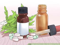 How to Get Rid of a Wart at the Bottom of Your Foot: 12 Steps Planters Wart, Wart On Finger, Warts On Hands, Warts Remedy, Get Rid Of Warts, Acetic Acid, Layers Of Skin, Cool Inventions, Fish Oil