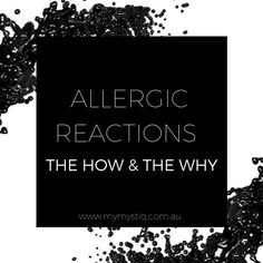 "Have you ever had a client who suddenly experienced an allergic reaction to their eyelash extensions, despite wearing them for an extended time with no previous issues? In this article we will discuss how this occurs and why. WHAT IS AN ALLERGY? The term allergy is defined by the American Academy of Asthma, Allergy, and Immunology as ""a chronic condition involving an abnormal reaction to an ordinarily harmless substance called an allergen."" A reaction to cyanoacrylate (the active…"