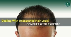 If you are dealing with unexpected #Hairloss daily. Consult with #Experts now To know more,visit:http://hairnsenses.co.in  #HairTransplant #HNS