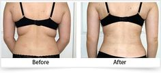 When Should You Go for Vaser Liposuction?  Vaser Liposuction offers a unique and innovative new approach to tackling those unwelcome areas of fat that are unreactive to diet and exercise. Vaser liposuction is a minimally invasive, safer alternative to liposuction, giving you a slimmer and more toned figure.  Please visit: http://www.nucosmeticclinic.com/surgical-vaser-liposuction/