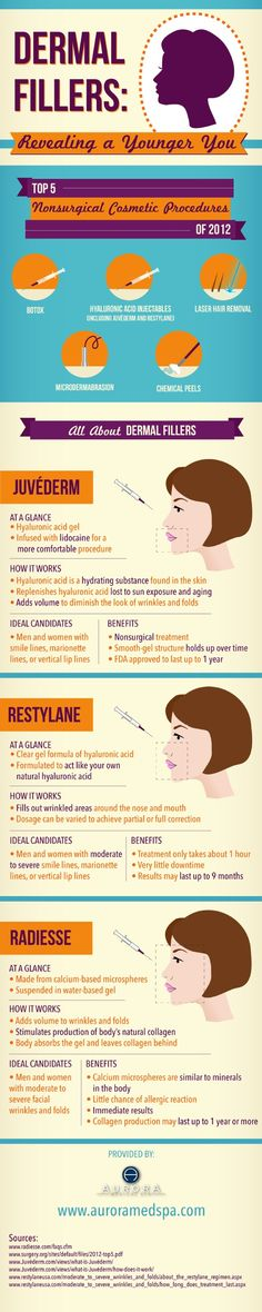 Juvéderm is a hyaluronic acid gel infused with lidocaine to provide a more comfortable experience for med spa guests. This dermal filler is FDA approved to last up to one full year! Get more dermal filler facts in this infographic. Facial Fillers, Botox Fillers, Dermal Fillers, Cosmetic Fillers, Hyaluron Filler, Facial Aesthetics, Medical Aesthetics, Kylie Jenner, Facial Rejuvenation