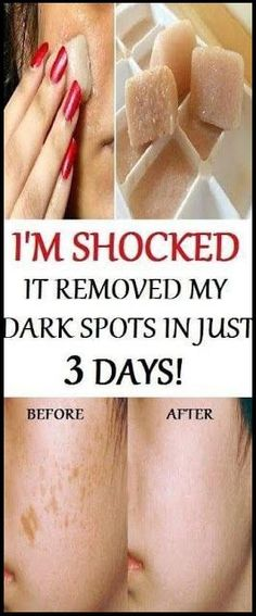 Magic Remedy I am Shocked It Removed My Dark Spots In 3 Days If you want to make your skin healthy and younger and at the same time to remove the dark spots you should use the powerful combination of pomegranate juice