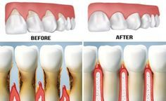 Stop Receding Gums and Stimulate Gum Growth in the Best Natural Way