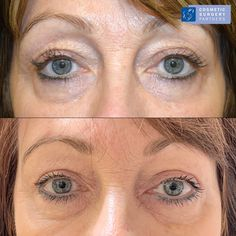 Upper Eyelid Surgery (Blepharoplasty) Before and after patient photos - For bookings please contact 020 7486 6778 or visit 💙 Anaesthetic: : LA (Local) 💙 Hospital Stay: Daycase⠀⠀⠀ 💙 Post-Operative: 2 week recovery 💙 Duration of surgery: 60 mins Facial Cosmetic Surgery, Eyelid Lift, Eyelid Surgery, Surgery Recovery, Eye Make Up, How To Remove, Cosmetics, Eyes, Face