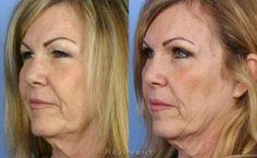 Upper Eyelid surgery Scottsdale