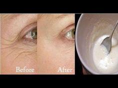 Say Goodbye to Wrinkles Here is a simple rice based mask that prevents wrinkles. You're going to want to try this for your crepey skin. - Diy Healthy Home Remedies Beauty Secrets, Beauty Hacks, Beauty Tips, Rice Mask, Avon Products, Gel Aloe, Anti Ride, Les Rides, Etude House