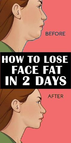 Losing Weight Tips, Lose Weight, Lose Fat, Reduce Face Fat, Reduce Double Chin, Natural Face Lift, Natural Skin, Natural Health, Muscle Stretches