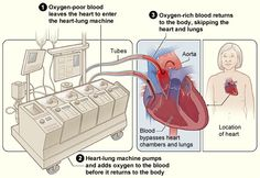 What to expect during heart surgery. | Heart-Lung Bypass Machine. | I recommend not researching this subject before the surgery. It's very important to remain calm and stress free if/when you have open heart surgery. Talk to your Cardiologist or Heart Surgeon about any questions/concerns you have. Let the physicians do the worrying and wait until AFTER to do your research if your still inclined to play doctor♥