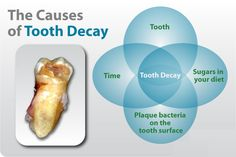 The Causes of #tooth #decay Eugene, Oregon DentaL CLUB Dentistry