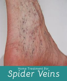 Natural Treatment for Spider Veins