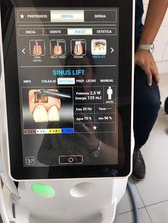 🎯 procedură chirurgicală fără sângerare; 🎯 decontaminare eficientă a țesutului; 🎯 vindecare rapidă. #chirurgieosoasa #sinuslift #lasererbiumyag #DoctorSmile