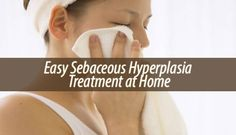 Occasionally you may find small bumps appearing on your face or on over parts of your body. Here is how you can do a sebaceous hyperplasia treatment at home