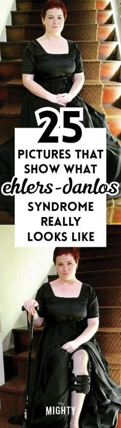 25 Pictures That Show What Ehlers-Danlos Syndrome Really Looks Like