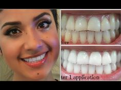 My Oral Hygiene + How I Keep a White Smile - YouTube // She talks about this product called Dial a Smile Professional Whitening Kit. There is a coupon code in the description that makes it $69 instead of $399.