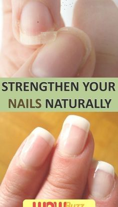 Natural Treatments To Strengthen Your Nails #WartsOnHands Warts On Hands, Warts On Face, Home Remedies For Warts, Cold Home Remedies, Cold Medicine, Natural Medicine, Get Rid Of Warts, Remove Warts, How Do You Remove