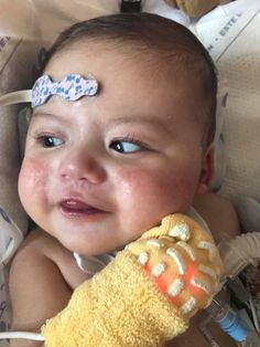 """Meet Phoenix, 7m, sent in by mom Dominique: """"several heart defects, Tetrollogy of Fallot, Pulmonary Atresia, a VSD (hole), MAPCAs, tracheostomy, developmentally delayed, G/J tube fed, eye issues (nystagmus), low calcium, & seizures..constantly smiling, (when he can) even through the hardships..He is the sweetest, strongest little angel. He has taught me so much about strength, and love in this life. Couldn't imagine life without 22q! Love my little bug! #22q"""