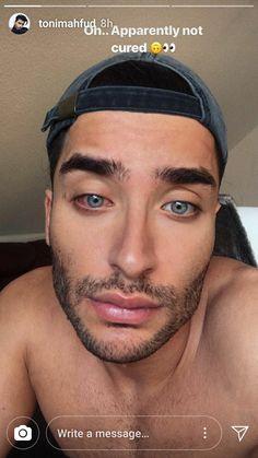 Rodrigo Alves Eyes