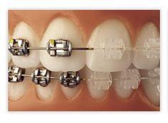 bdental-ortodoncia