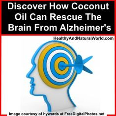 Top 5 Foods and Supplements to Delay Alzheimer's Disease and Dementia Discover How Coconut Oil Can Rescue The Brain From Alzheimer's. Coconut Oil For Acne, Coconut Oil Uses, Benefits Of Coconut Oil, Natural Cures, Natural Healing, Health And Beauty Tips, Health Tips, Healthy Beauty, Healthy Hair