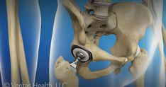 In this procedure, the hip joint is replaced with a prosthetic implant. This animation shows the basic process involved in a hip replacement surgery.