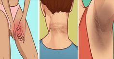 La Acantosis Nigricans es una condición en la que la pigmentación de la piel (especialmente la del cuello, piernas y axilas) se torna de un color oscuro. Esto afecta principalmente a personas con s…