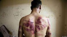 Laporan Amnesti: Hingga 2015 Hampir 18.000 Orang Tewas dalam Penjara Rezim Syiah Suriah  Tahanan yang disiksa dalam penjara rezim Asad. (Foto: Getty Image)  Syiahindonesia.com - Hampir 18.000 orang tewas dalam tahanan rezim Nushairiyah pimpinan Bashar Asad sejak 2011 hingga 2015 menurut laporan Amnesti Internasional diduga korban dipukul dan diperkosa di dalam penjara. Amnesti mengatakan laporannya juga termasuk wawancara dengan 65 korban penyiksaan yang selamat yang telah menggambarkan…