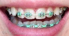 mint green braces: bottom power chain