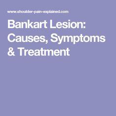 Bankart Lesion: Causes, Symptoms & Treatment