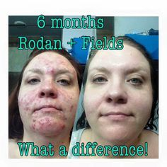What a difference 6 months of consistently using  Unblemish has made for Melissa! Whether you have adult acne, cystic acne, breakouts Unblemish may be the solution to help you. Message me to get you started indra.arman@gmail.com