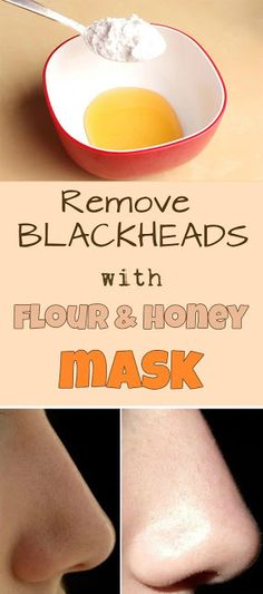 Remove blackheads with flour and honey mask....JUST ADD 2 TSP OF HONEY IN BOWL ADD FLOUR  IN IT AND APPLY TO THE TARGETED AREA ALSO MASSAGE IN UPWARD CIRCULAR MOTION SO THAT BLACK HEADS REMOVE KEEP THAT MIXTURE ON TARGETED AREA FOE AT LEAST 15 MIN. FOR BETTER RESULT...