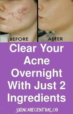 acne treatment Acne Treatment apple cider vinegar Acne Treatment diy Acne Treatment how to get rid Acne Treatment overnight Acne Treatment products Back Acne Treatment Clear your acne overnight with just 2 ingredients Cystic Acne Treatment, Back Acne Treatment, Natural Acne Treatment, Homemade Acne Treatment, Treatment For Oily Skin, Face Treatments For Acne, Homemade Acne Remedies, Face Treatment At Home, Overnight Acne Treatment