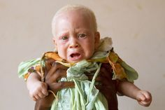 Abdulswamad, 7 months-Portraits of Albinism in Tanzania