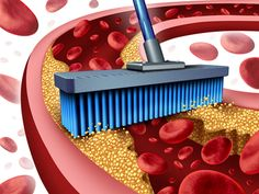 Systemic,+Proteolytic+Enzymes rebuild cardiovascular health, reduce and possibly eliminate fibrin scarring