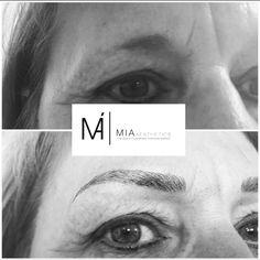 #MIAAesthetics #Beauty #Eyebrows #MIABlackDiamondEyebrows #Micropigmentation