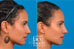 For rhinoplasty with no surgery & no downtime, Clevens Instant Liquid Rhinoplasty in Orlando, FL can achieve the nose of your dreams instantly. Nose Plastic Surgery, Plastic Surgery Photos, Nose Surgery, Job Goals, Rhinoplasty Before And After, Perfect Nose, Before After Photo, Body Modifications, Perm